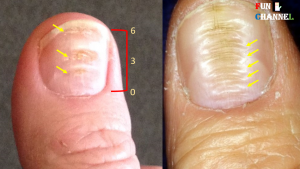 Horizontal Ridges on Toenails Causes, Symptoms, Prevention, Remedies & Treatment